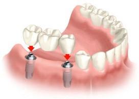 Стоматологія Федака Романа - фото 6