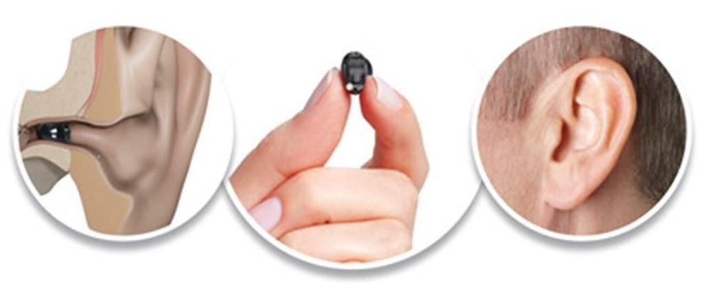 Тернопільський центр корекції слуху - фото 27