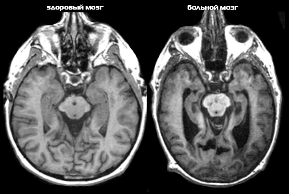 Болезнь Альцгеймера на МРТ головного мозга