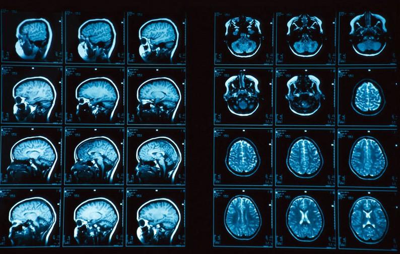 Что нельзя увидеть на МРТ головного мозга
