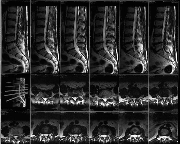 Что показывает МРТ пояснично-крестцового отдела