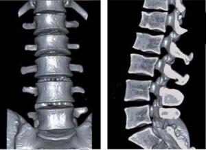 КТ или МРТ позвоночника