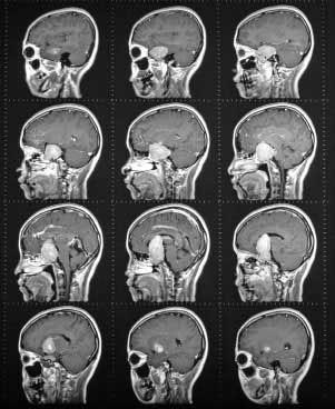 МРТ головного мозга и гипофиза