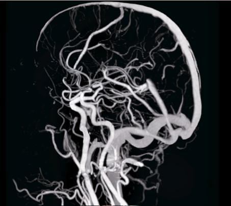 МРТ артерий мозга