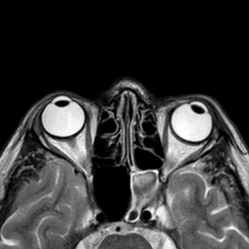 МРТ глаз
