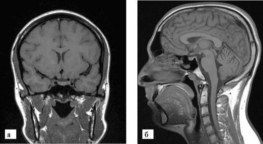 МРТ головного мозга и мрт гипофиза