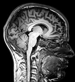 МРТ гипофиза с контрастом