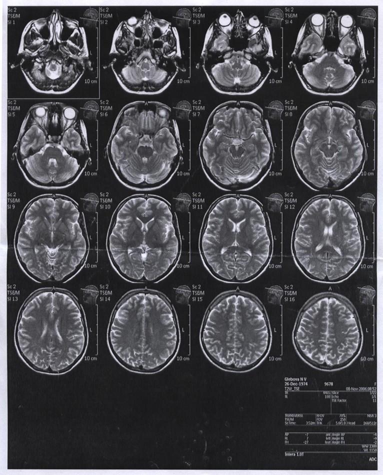 Снимки МРТ головного мозга
