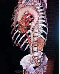 МРТ или КТ грудного отдела аорты: достоинства и недостатки