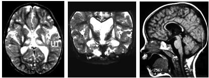 МРТ диагностика кисты головного мозга