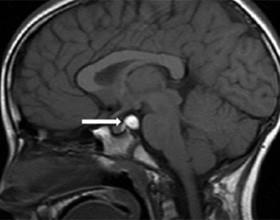 Киста головного мозга на МРТ