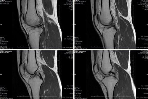 Показания к МРТ коленного сустава