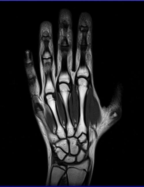 Мрт лучезапястного сустава москва гимнастика голеностопного сустава после перелома лодыжки видео