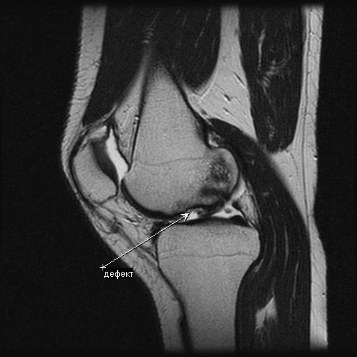 Что можно увидеть с помощью мрт коленного сустава виктория островская гимнастика для суставов