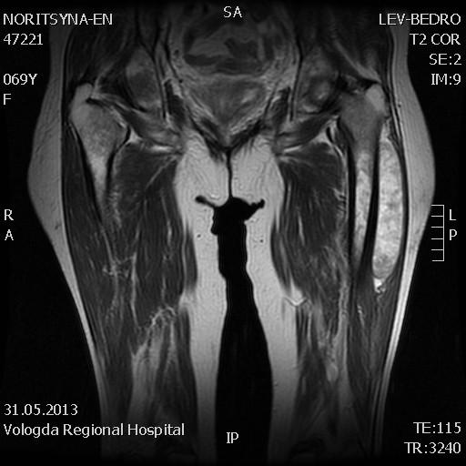 МРТ тканей бедра