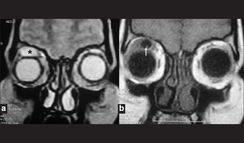 МРТ мягких тканей лица