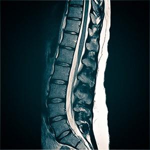 Показания к МРТ пояснично-крестцового отдела позвоночника