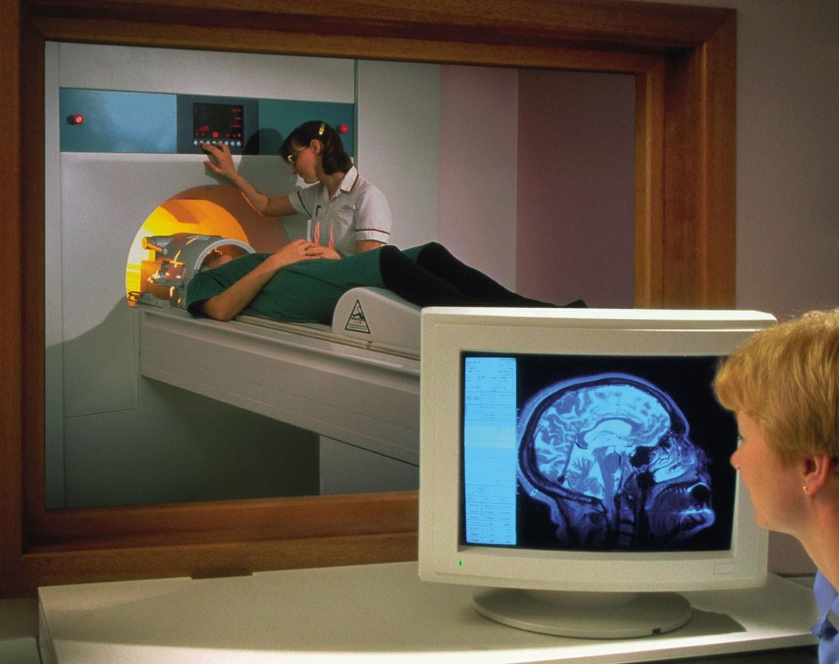 Что показывает МРТ сосудов головного мозга?