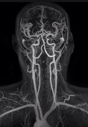 МРТ сосудов позвоночника