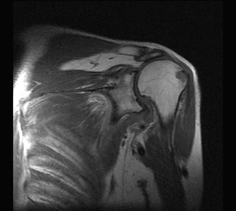 МРТ плеча