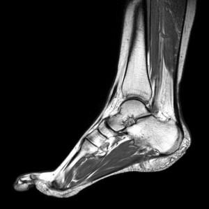 Голеностопный сустав на снимке МРТ
