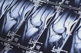 МРТ суставов: вопросы и ответы