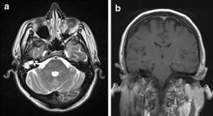МРТ внутреннего уха