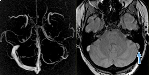 Тромбоз синусов на МРТ вен головного мозга