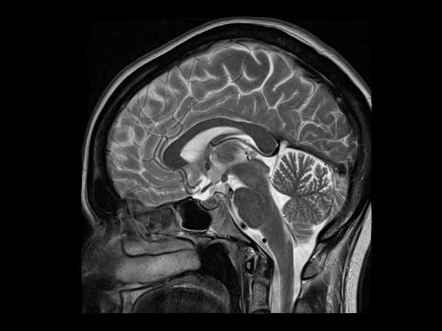 МРТ головы