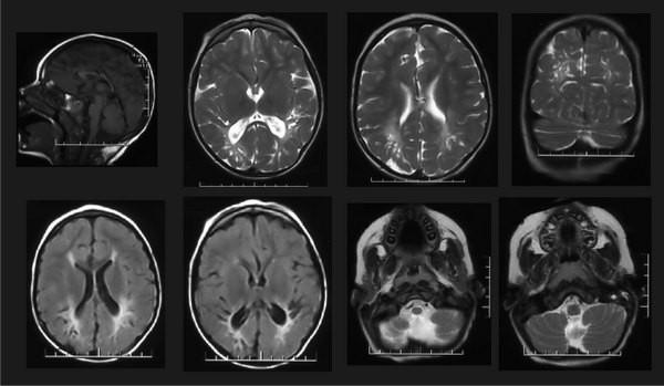 МРТ снимки головы