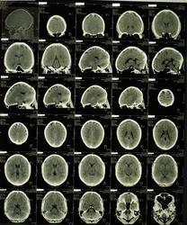 Описание КТ головного мозга