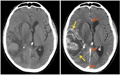 Опухоли на КТ снимках головного мозга