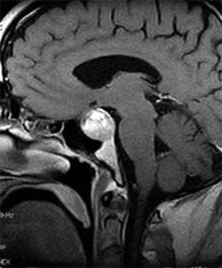 Макроаденома на МРТ гипофиза