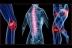 יש לכם כאבים וכל הבדיקות הרפואיות יוצאות תקינות? תחשבו על כאב מושלך