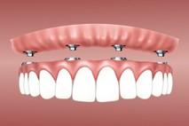 """מהי השתלת שיניים ממוחשבת? צפו בד""""ר מאיר אבירם מסביר"""