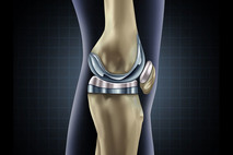 כאבי ברכיים בזמן הריצה - איך למנוע?