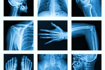 צילום עצמות - כלי אבחון רב שימושי