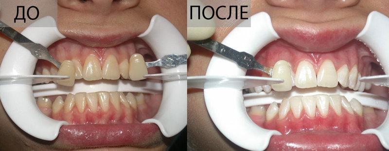 отбеливание зубов, отбеливание beyond, отбеливание зубов до и после