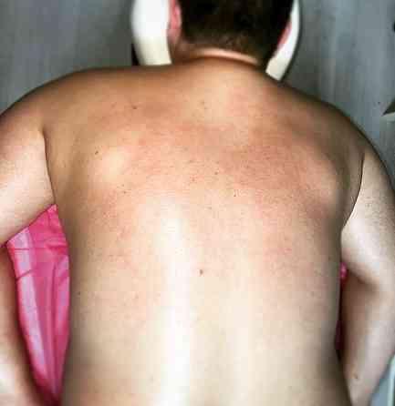 Профилактический и антицеллюлитный массаж! Херсон