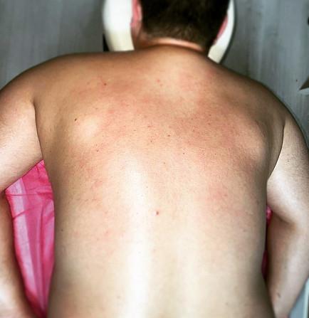 Профилактический и антицеллюлитный массаж! Херсон - зображення 1