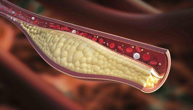 Immagine di un trombo venoso