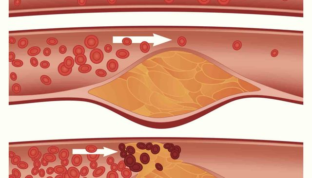 Un coagulo, creatosi nella vena, ostruisce il flusso sanguigno