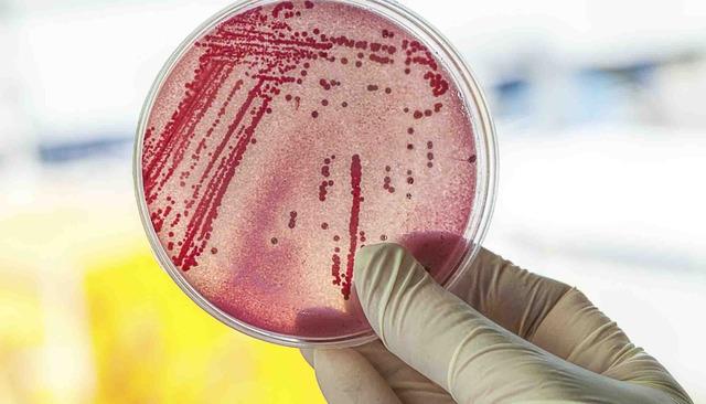 Vibrione | Pazienti.it
