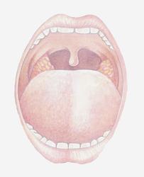 Mal di lingua