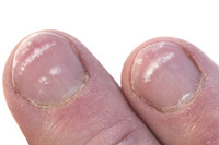 Macchie sulle unghie (unghie rosse o nere)