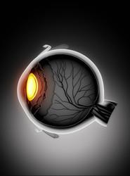 Perdita della vista