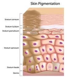 Depigmentazione della pelle