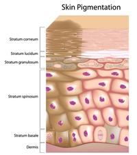 Depigmentazione della pelle | Pazienti.it