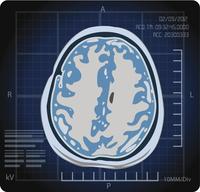 Convulsioni | Pazienti.it