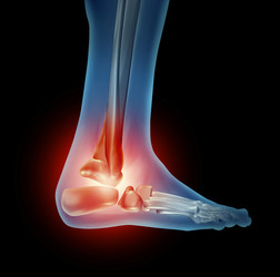 Tendine d'Achille e tendinite: dolore e infiammazione